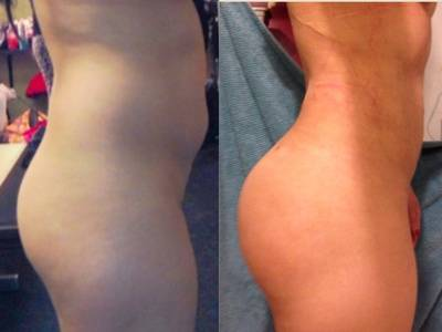 Before and after of buttock augmentation with lposuction & fat grafting