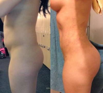 Buttock Augmentation Fat Transfer Before and after