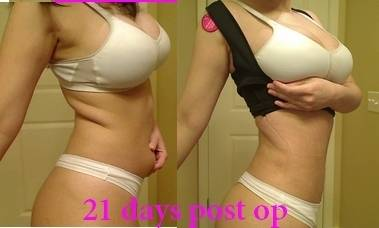 Buttock enhancement with liposuction