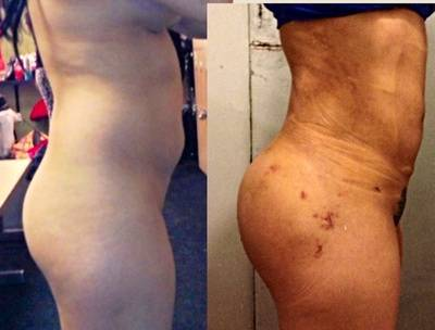Before And After Butt Implants 13