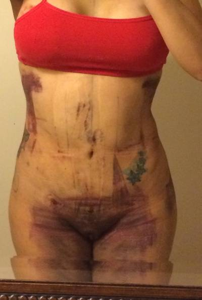 bruising after tummy tuck » Butt Augmentation: Prices, Pics