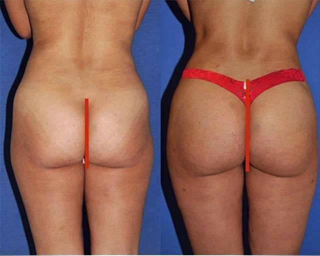 Train butt augmentation pics