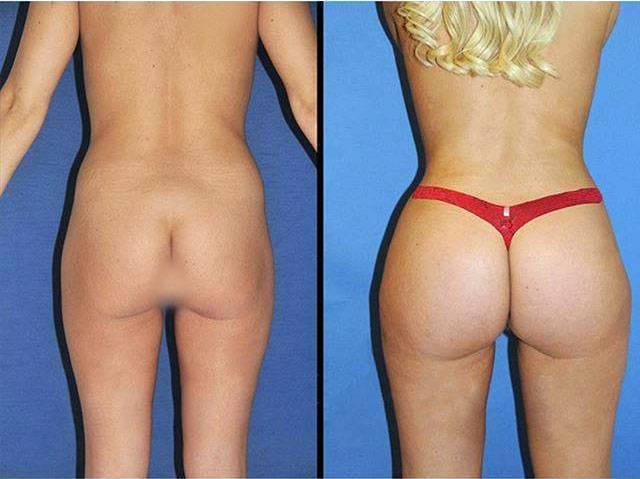 Big ass brazilian.com