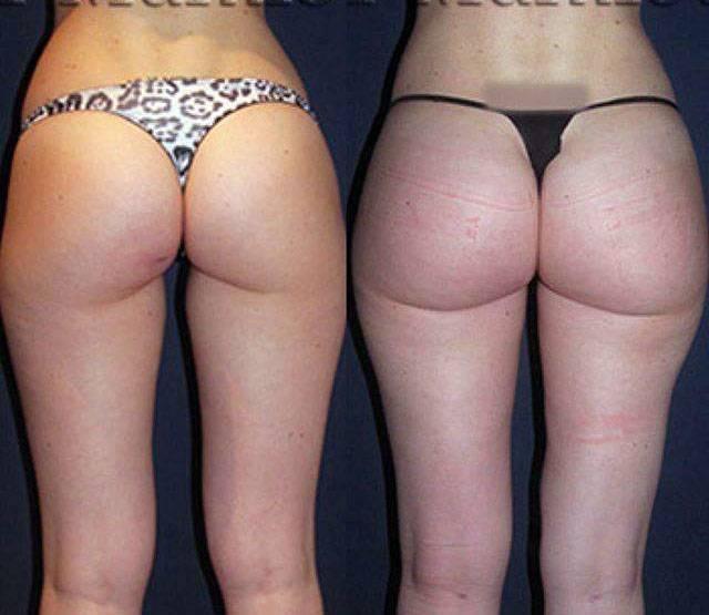 Butt Implants Price 84