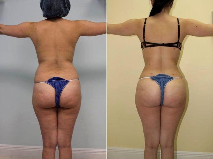 Brazilian Butt Lift Workout Reviewsbrazil Butt Lift Workout Beachbody Leandro Carvalho
