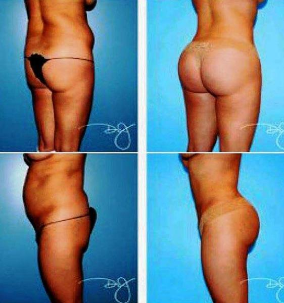 Brazilian Butt Lift Before And After Pictures 113