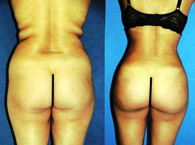 Brazilian butt lift before after